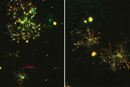 Oligodendrocytes in healthy individuals and those with schizophrenia