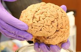 Scientist holds a human brain